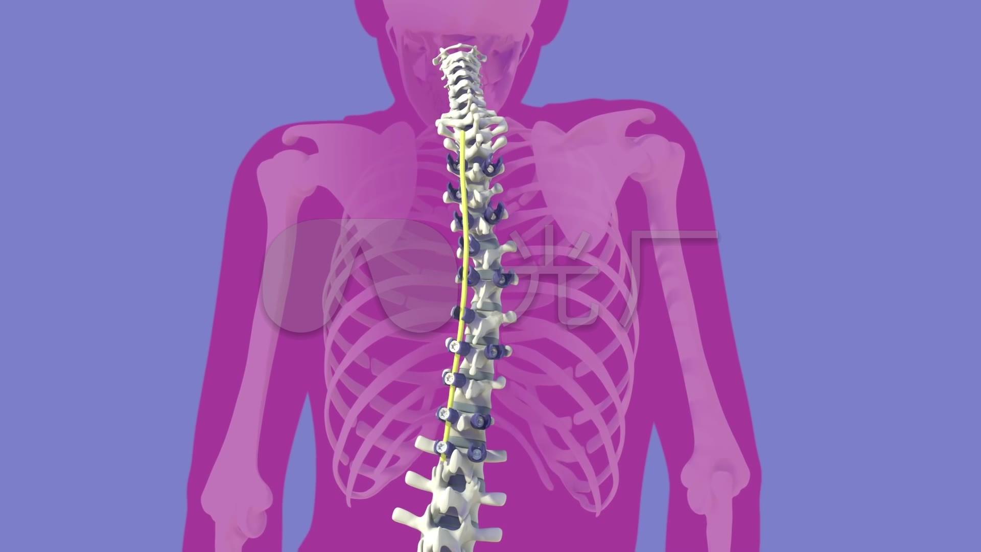 脊柱侧弯矫正手术动画_1920X1080_高清视频素材下载(编号:1676673)_实拍视频