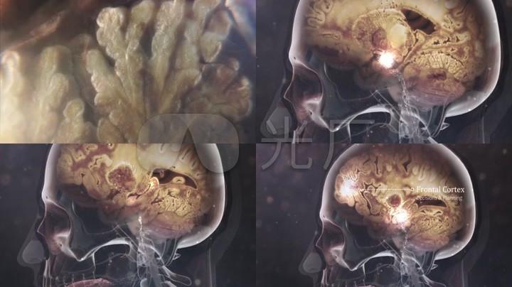 大脑神经元结构活动_人体器官舌头三维动画