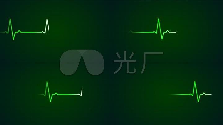 绿色心电图跳动波形医院视频素材
