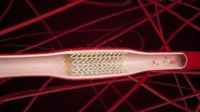 医疗类可降解心脏支架动画(一)C4D工程C4D工程