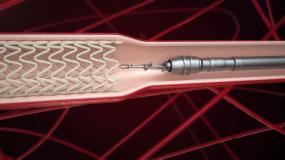 医疗类可降解心脏支架动画(二)C4D工程C4D工程
