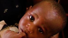 疟疾疫情非洲70年代视频素材