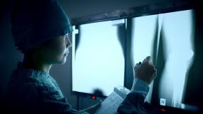 医生用铅笔指着看X光片视频素材
