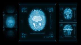 脑 CT 医疗 保健 健康 疾病 疾病视频素材